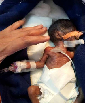 Dr. Sanajy Gandhi Miracle New Born baby successful heart surgery