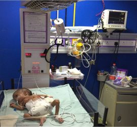 Dr. Sanjay Gandhi 2.5 kg child with ASD, VSD, and PDA