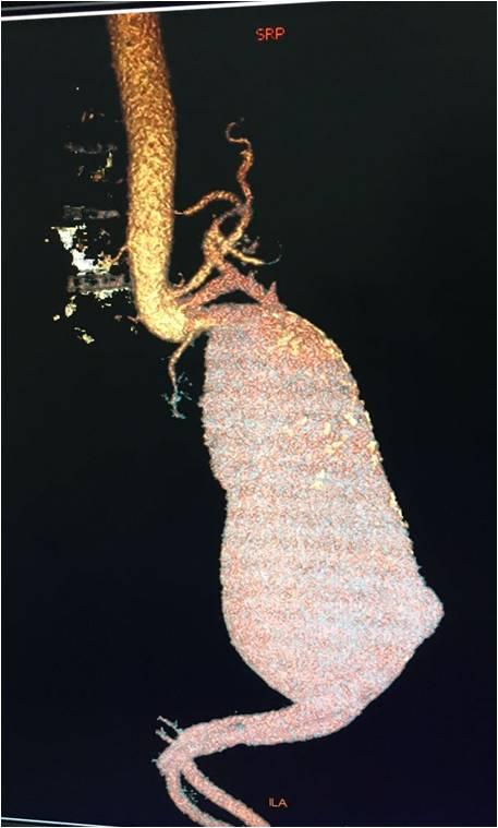 Juxtarenal aortic aneurysm